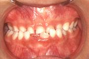 幼児期の顎の歪み 治療前