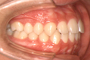 幼児期の顎の歪み 治療後