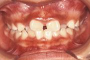 歯並びがガタガタ 治療前