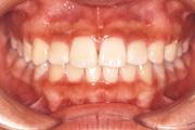 歯並びがガタガタ 治療後
