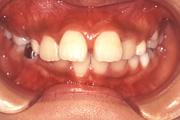 出っ歯(上顎前突) 治療前