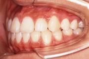 出っ歯(上顎前突) 治療後