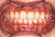 受け口(下顎前突) 治療後