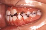 前歯が閉じない(開咬) 治療前