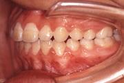 前歯が閉じない(開咬) 治療後