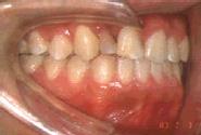 唇顎口蓋裂