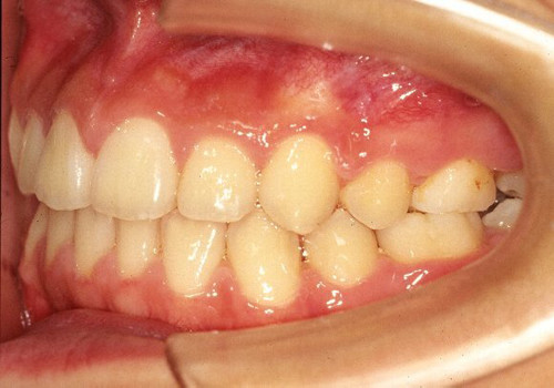 6歯以上の先天欠如症例