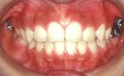 一期治療が終了したところで全ての歯が永久歯に生え変わりました