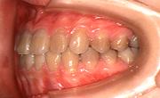 受け口が治り、歯を抜くことなく受け口の治療が終了しました
