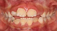 奥歯が上下噛みあたっているのに前歯が噛みあたらない