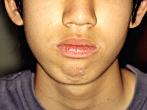 いつも口を開いており、無理につむろうと思うと下唇の下に梅干のような皺ができる