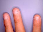 幼稚園に上がるまで、もしくは現在まで指をしゃぶったり爪を噛んだりしている